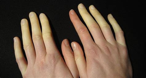 Raynaud's Syndrome - Symptoms, Causes And Natural Remedies